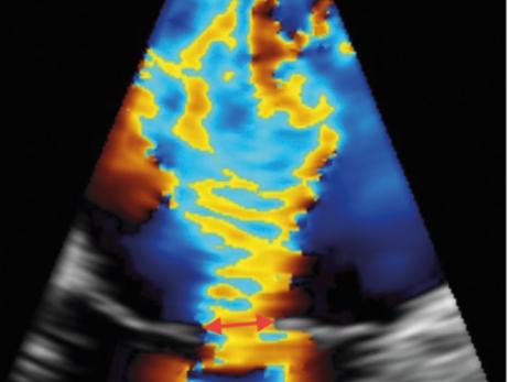 Regurgitação Mitral: Avaliação da Gravidade pelo Ecocardiograma