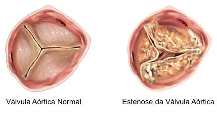 Estenose severa valvar aórtica em pacientes assintomáticos, devo operar?