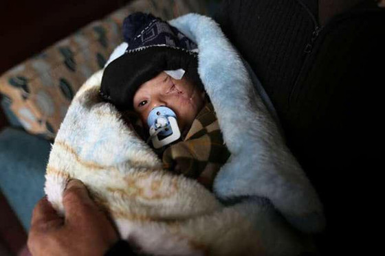 Kisah Derita Dari Bumi Syria