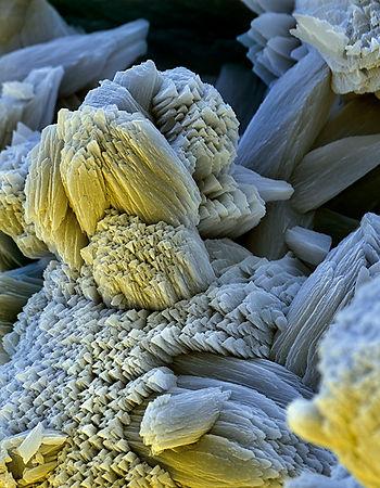 Соли жёсткости: кальция и магния подмикроскопом