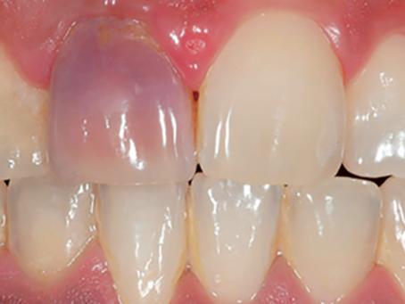 Etiopatogenia del fenómeno del diente rosa (Post mortem)