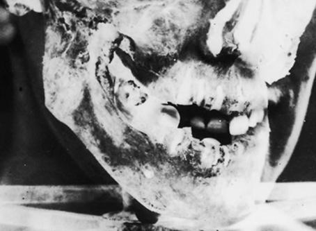 Determinación de la Edad por Dentadura
