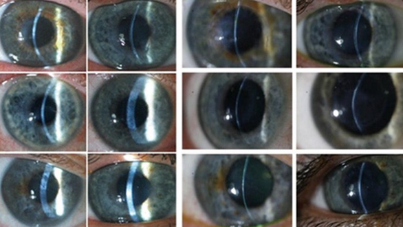Bioengineered Cornea Are About To Enter The Clinical Realm. What Does That Mean?