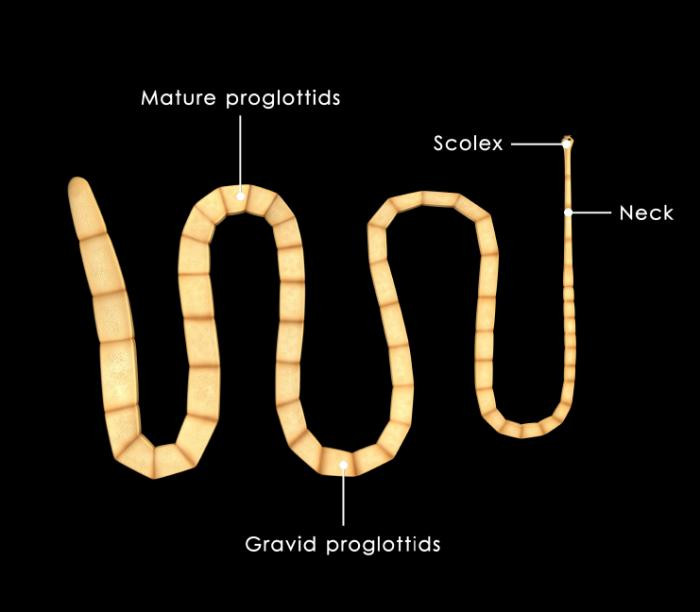 Brain-Invading Tapeworm That Eluded Doctors Spotted by New DNA Test - Read More from Scientific American