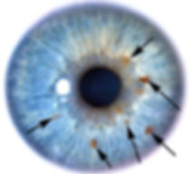 Blue eye 2000_edited.jpg