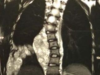 Dr. Valmor relata caso de neurofibroma em Revista científica