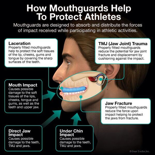 Mouth guard.jpg