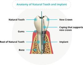 Dental implant anatomy.jpg