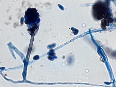 Stachybotrys