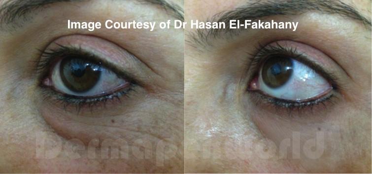 Improvement in Wrinkles and Skin Tightening after Dermapen