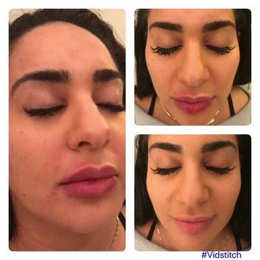 Cheek and Lip Augmentation