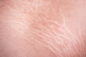 Macro stretch marks of skin on the thigh