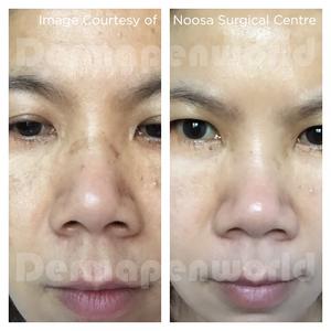 Results of Dermapen on Pigmentation