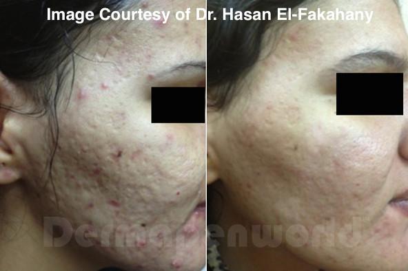 Dermapen acne scarring treatment