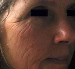 Facial Wrinkles Before Dermapen
