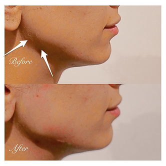 Jaw & Chin Filler | Doctor | London | Mobile | Cosmetic