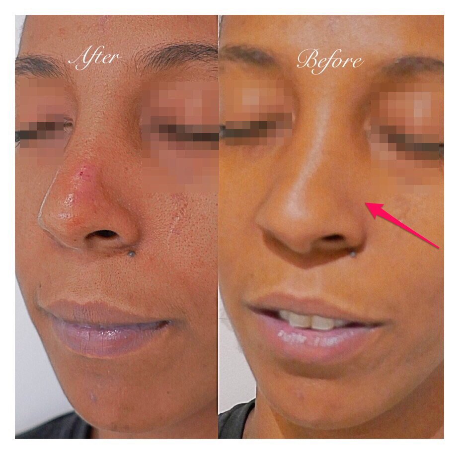 The Non-Surgical Rhinoplasty Dr Dara