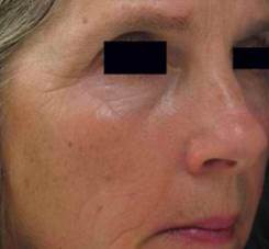 Improvement in wrinkles after a course of Dermapen