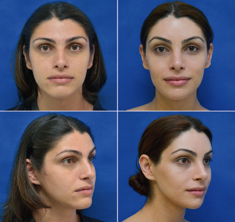 Image:http://facialfeminizationsurgery.com