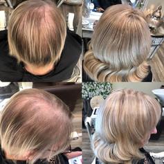 Godiva Hair Loss Solutions. 🌟🌟🌟🌟🌟🌟