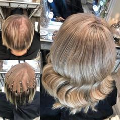 Godiva Hair Loss Mesh Integration System