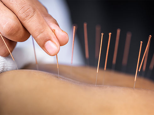 acupunktur østerbro