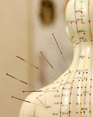 akupunktur københavn