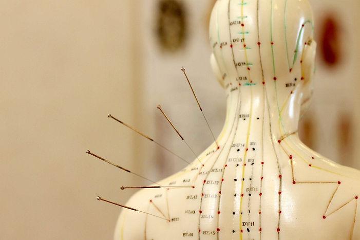 akupunktur østerbro