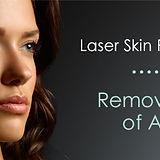 skin-resurfacing-email-header-600x2571.j