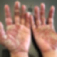 2006-7-01  汗皰疹閱讀心得.jpg