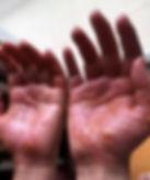 2006-7-0516  汗皰疹閱讀心得.jpg