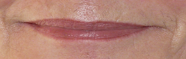 lip.png