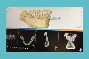 tcb-implantologie-voorbeeld-01