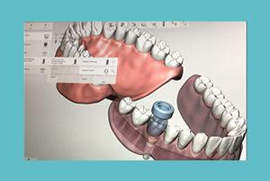 tcb-implantologie-voorbeeld-02