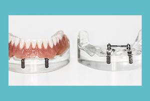 tcb-implantologie-voorbeeld-05