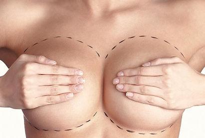 mamopalstia.jpg
