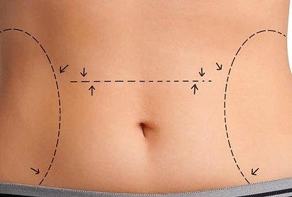 recuperação-abdominoplastia-1260x630.jpg