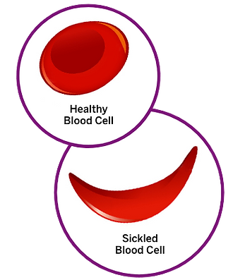 2.1-What-causes-Sickle-Cell-pain (1).png