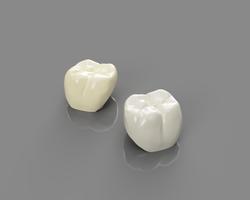 Coronas 3Dfabricadas con composite de alta resistencia