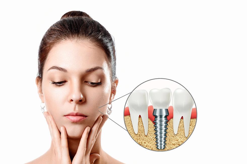 Mujer con implante monofásico