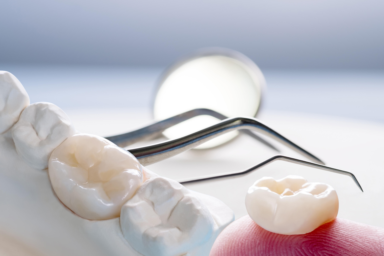 corona dental.jpg