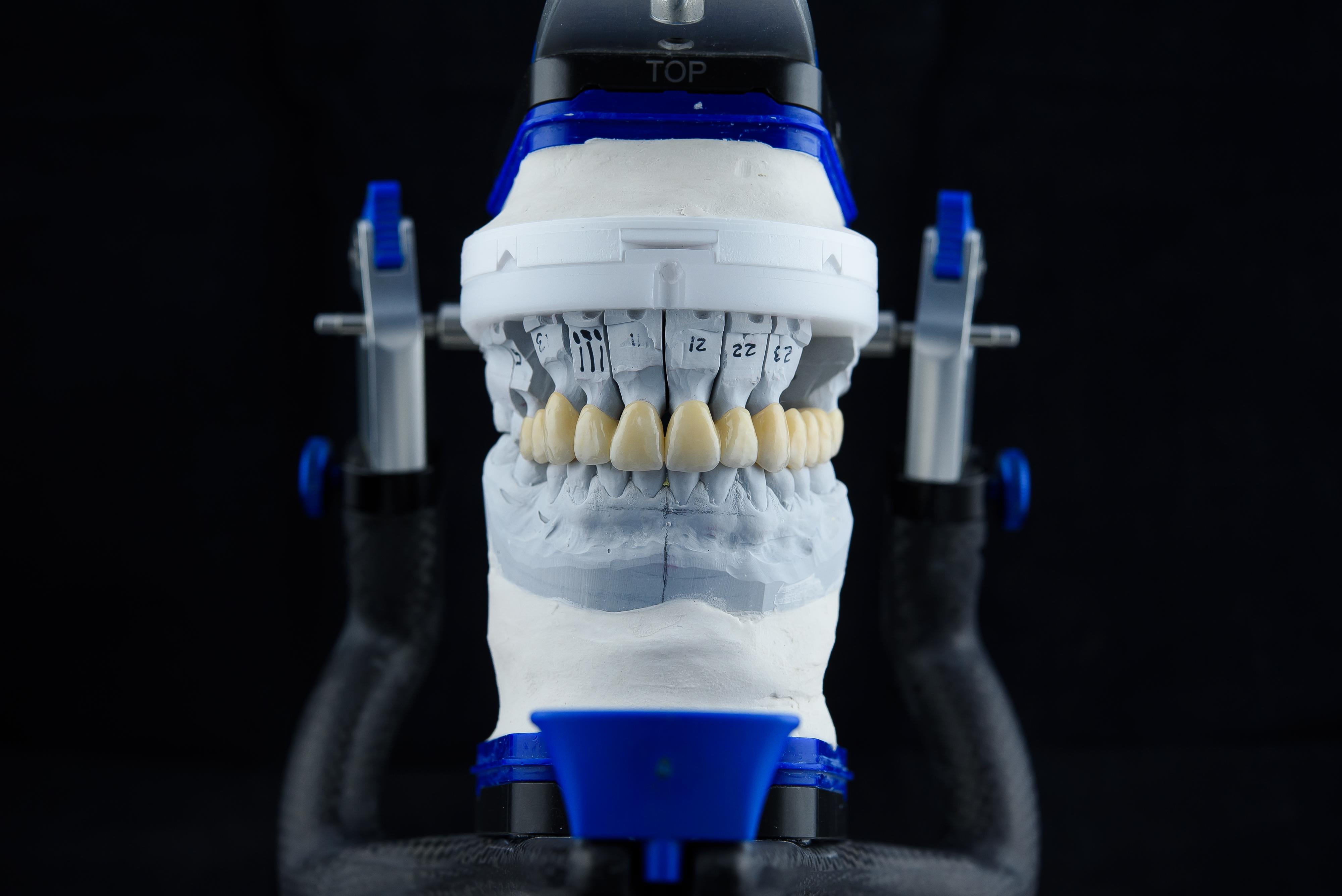 articulator-in-dental-lab.jpg