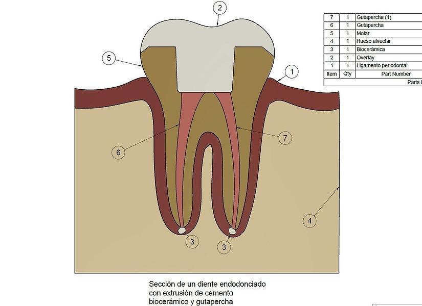 molar endodonciado.jpg