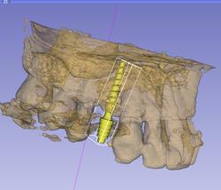 Estudio del hueso en el slicer 3D