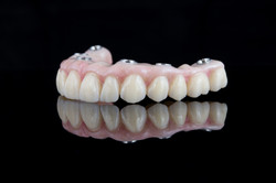 protesis cementada implanto soportada 1.