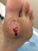 diabetic foot, diabetic ulcer, diabetic foot checkup, diabetes checkup, diabetes in malaysia, diabetic foot prevention