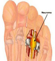 Morton's neuroma, pain at ball of foot, pain at toes, tumour in toes