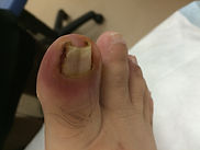 ingrown nail, infected toe, pus nail