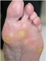 corns, corn, callus, callous, pain in feet, pain in toes, hard skin on feet