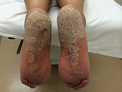 hyperkeratosis, hard skin on feet, dry skin feet, cracked heels